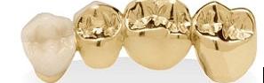 Sell Dental Gold Chicago
